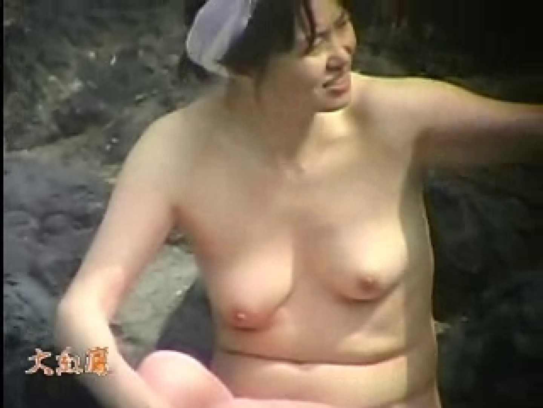 美容外科医が撮った女性器② 鬼畜 ワレメ無修正動画無料 98pic 5
