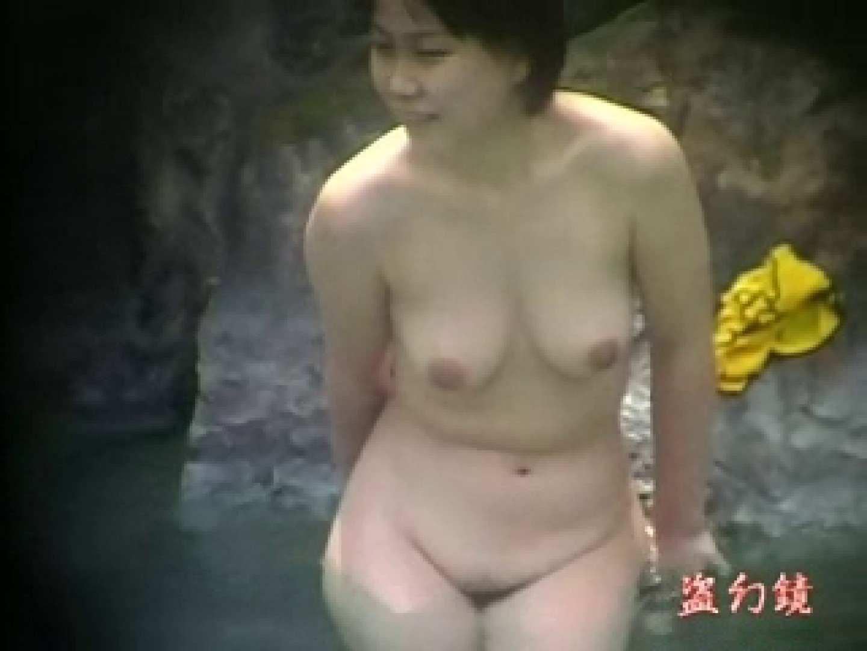 美容外科医が撮った女性器② アナル無修正 おまんこ無修正動画無料 98pic 94
