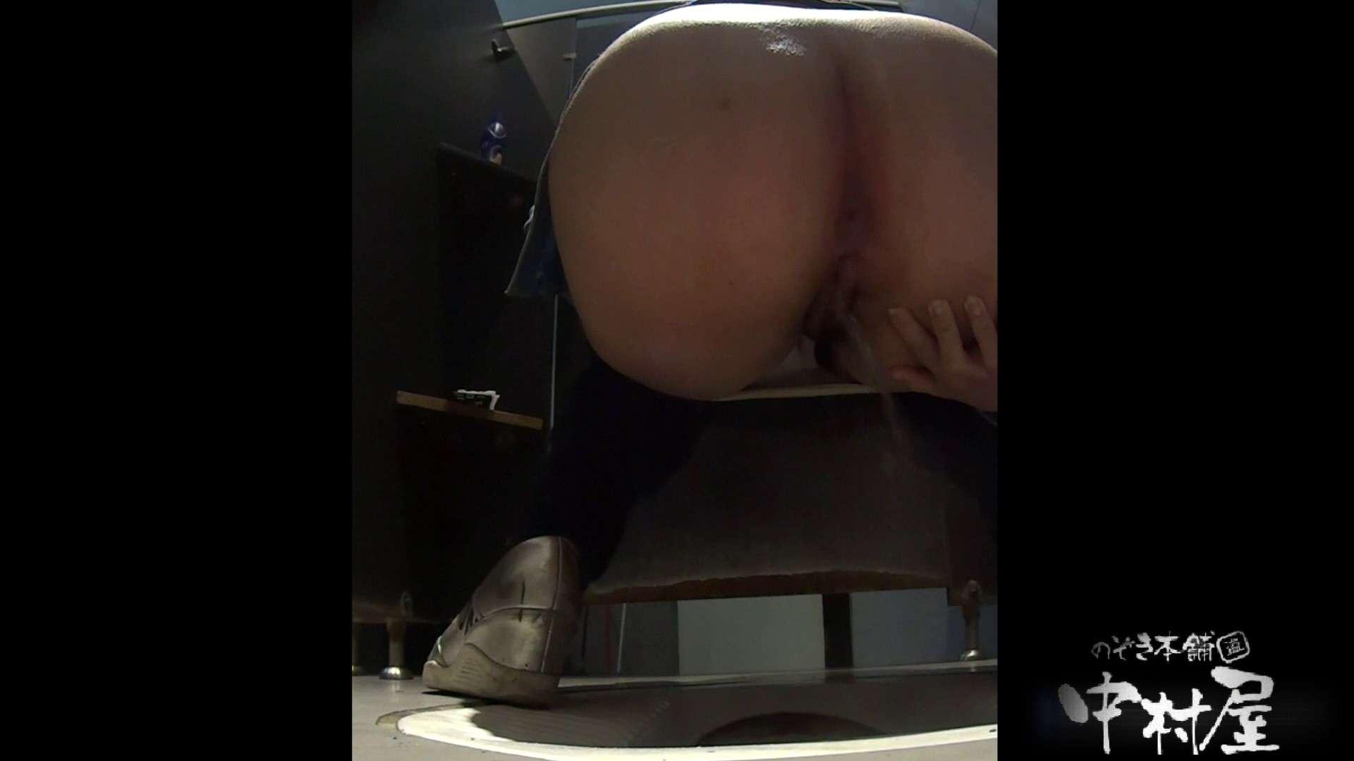 お尻に出来てるオデキがキュート 大学休憩時間の洗面所事情20 美女丸裸 | 盗撮師作品  86pic 31