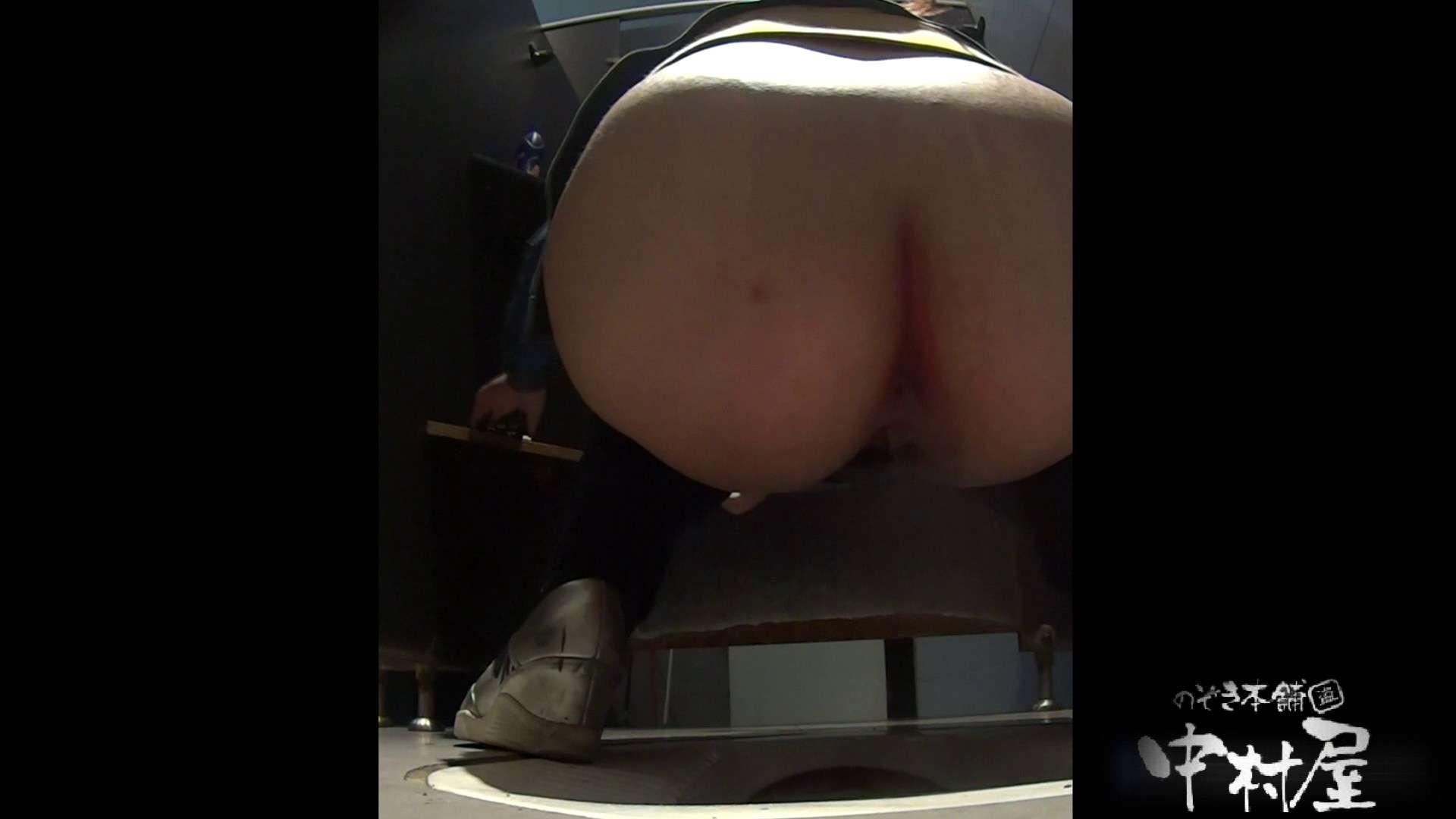 お尻に出来てるオデキがキュート 大学休憩時間の洗面所事情20 美女丸裸  86pic 40