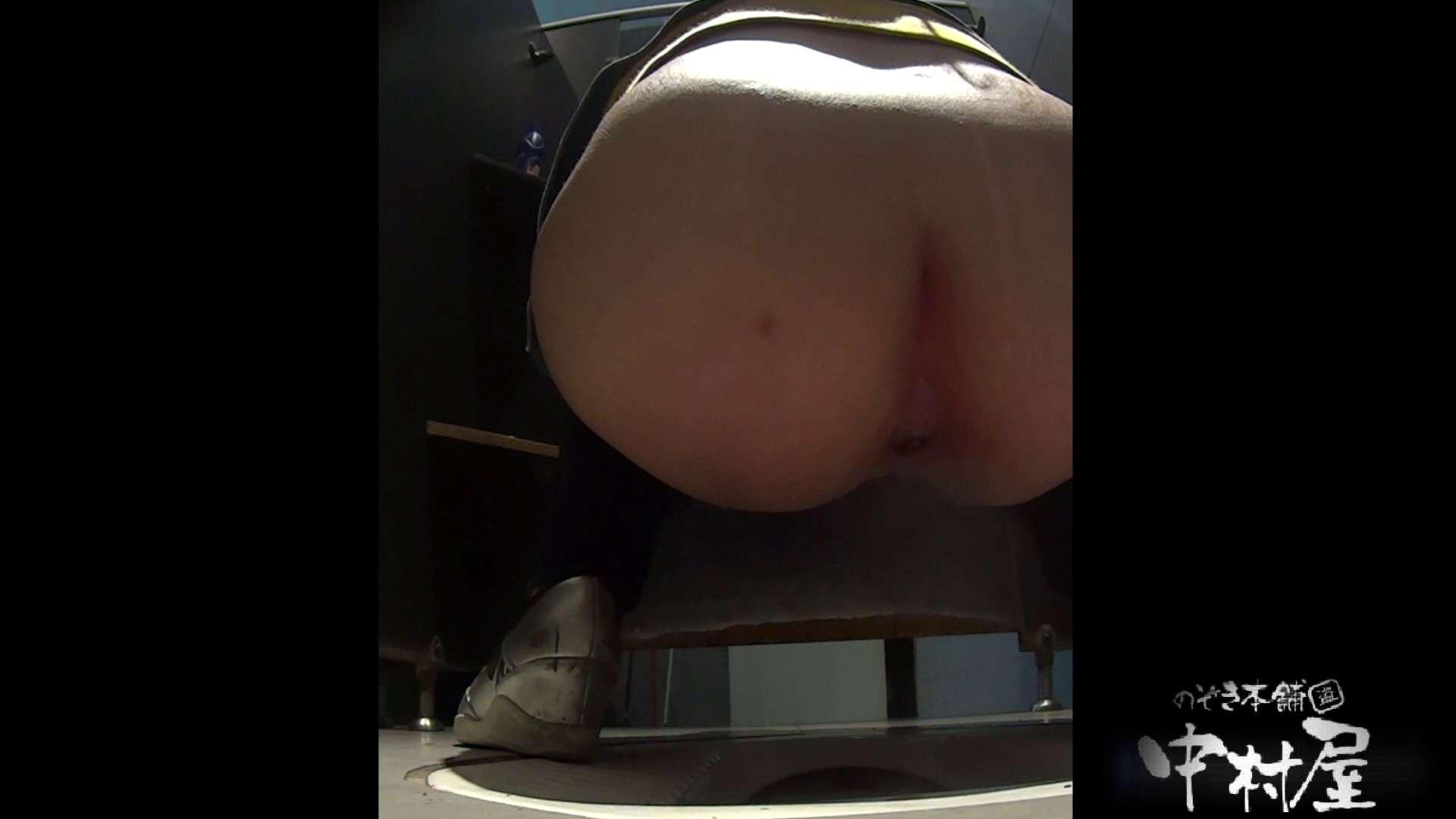 お尻に出来てるオデキがキュート 大学休憩時間の洗面所事情20 お姉さん丸裸 アダルト動画キャプチャ 86pic 58